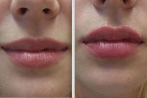 Lippenvergrößerung / Lippenmodellierung mit Hyaluronsäure