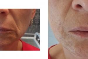 Volumetrische Gesichtsbehandlung (u.a. Gesichtsmodellierung, Behandlung der Nasolabialfurche, Falten