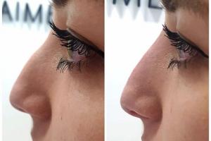 Nasenmodellage mit Hyaluronsäure